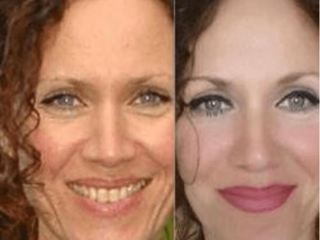 Gesichtsyoga-vorher-nacher-Augenfalten