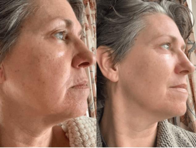 Gesichtsyoga-vorher-nachher-Hängebäckchen